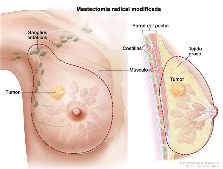 cancer pecho hormonal
