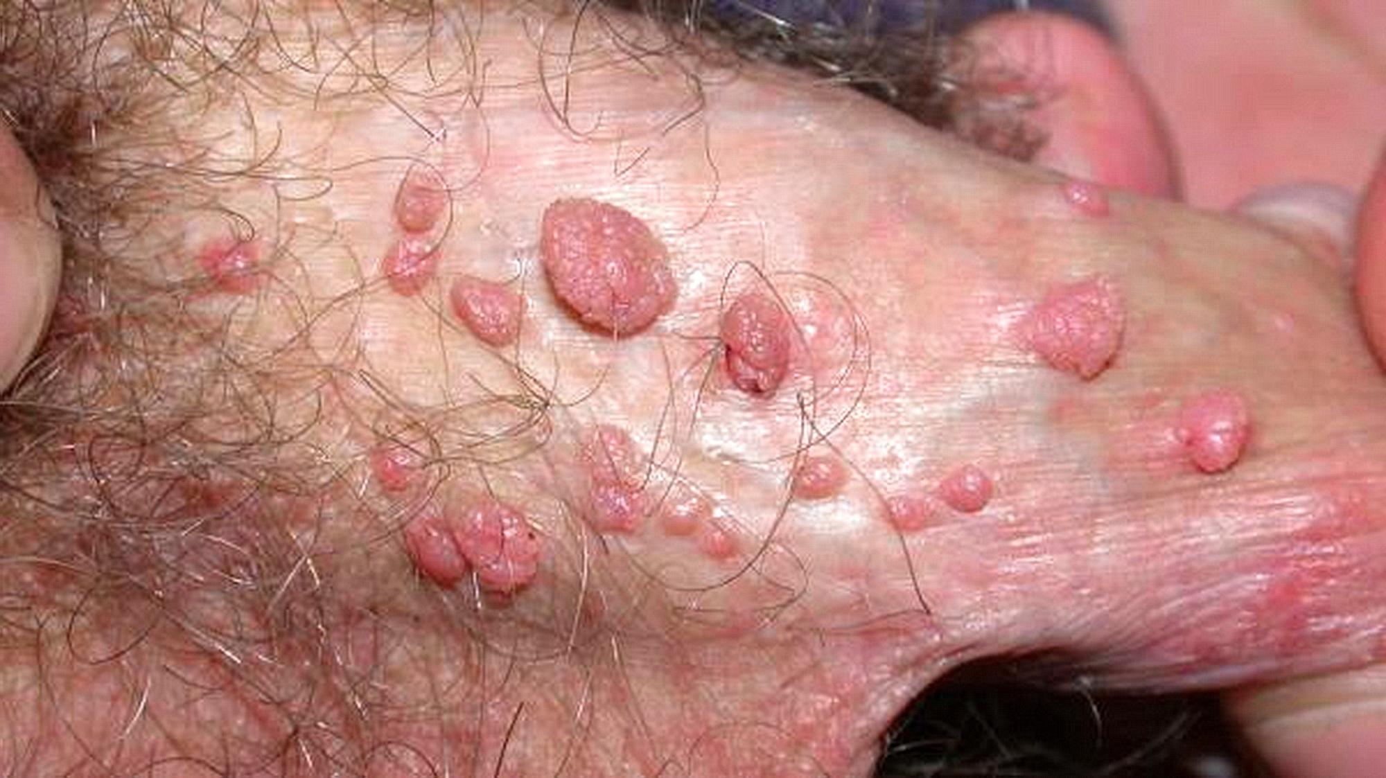 papilloma virus uomo crema