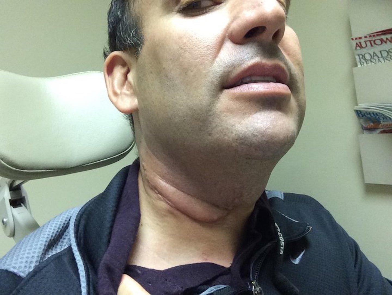 hpv neck throat cancer symptoms)