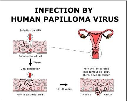 which symptom applies to human papillomavirus (hpv))