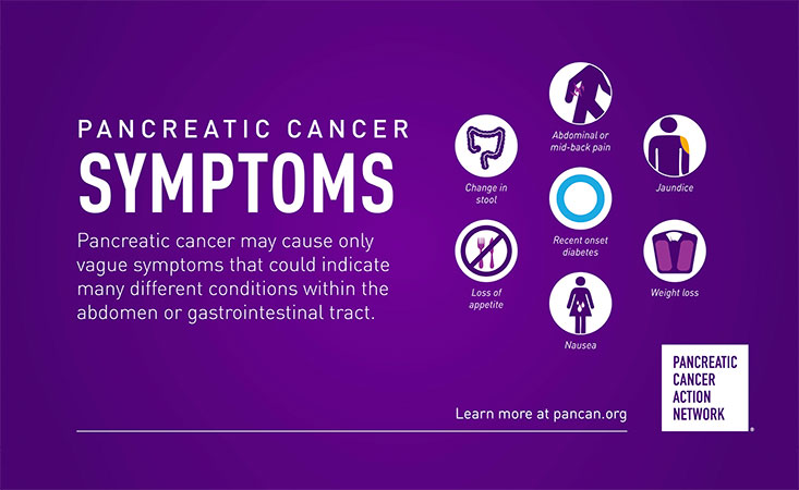 pancreatic cancer early signs