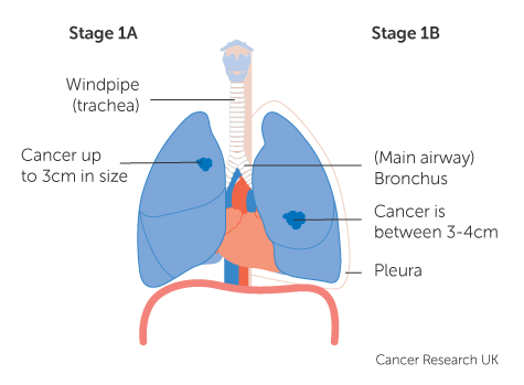 cancer pulmonar non-small cell