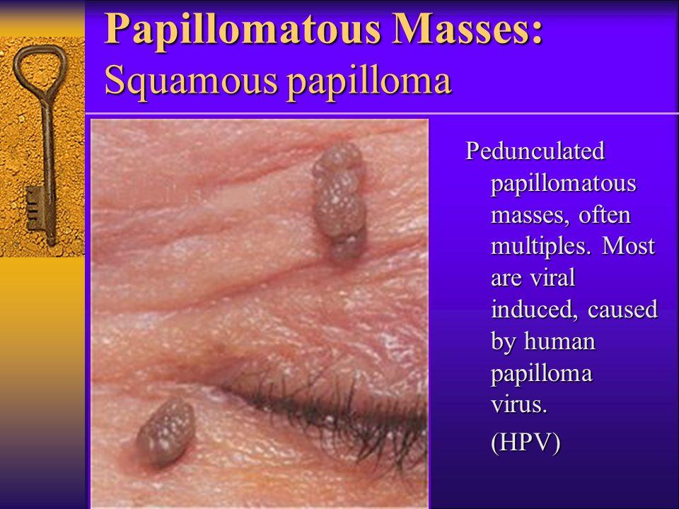 squamous papilloma neck)