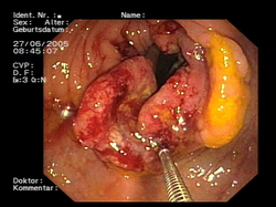 el cancer de colon como se manifiesta)