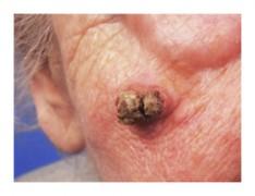 papillomavirus sur le nez