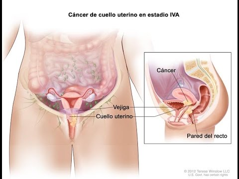 que es cancer in situ