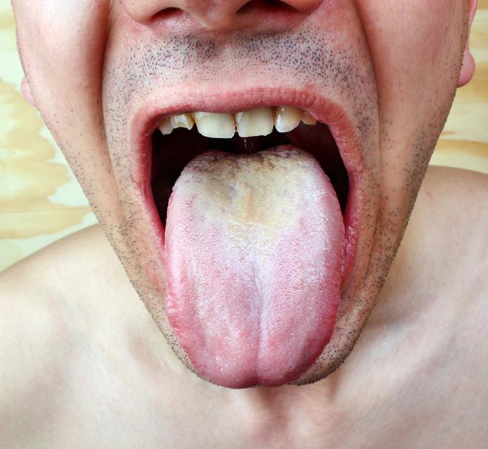 hpv lingua cura naturale