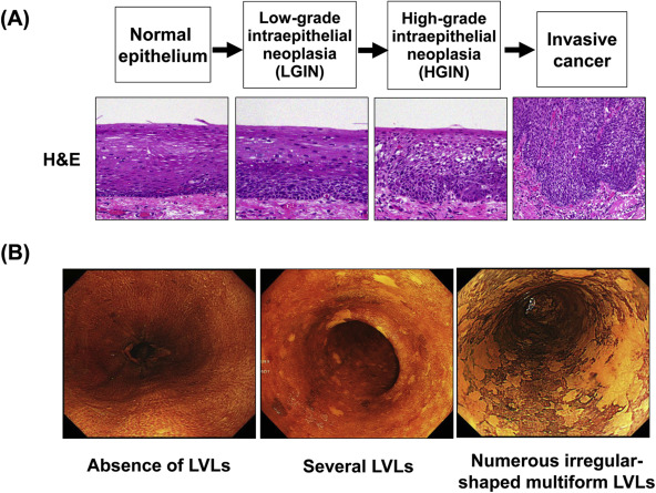 hpv esophageal squamous cell carcinoma)