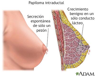 papiloma intraductal de mama causas