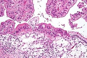 Mucinous Carcinomul: Rata de supravietuire, recurență, și tratament