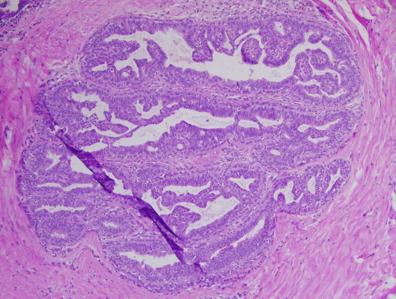 malignant ductal papilloma anemie ecn