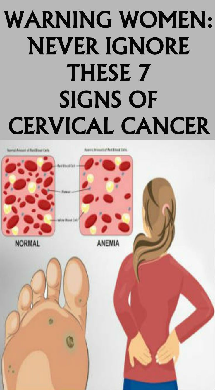 cervical cancer discharge pictures