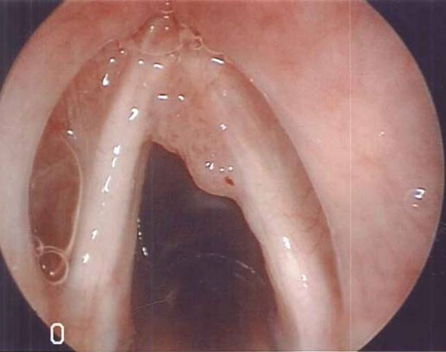laryngeal papillomatosis obstruction