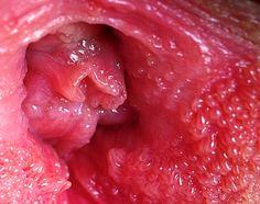 vestibular papillomatosis irritation)