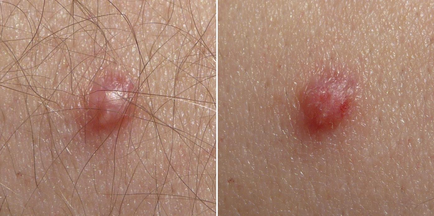 papilloma virus chez lhomme)