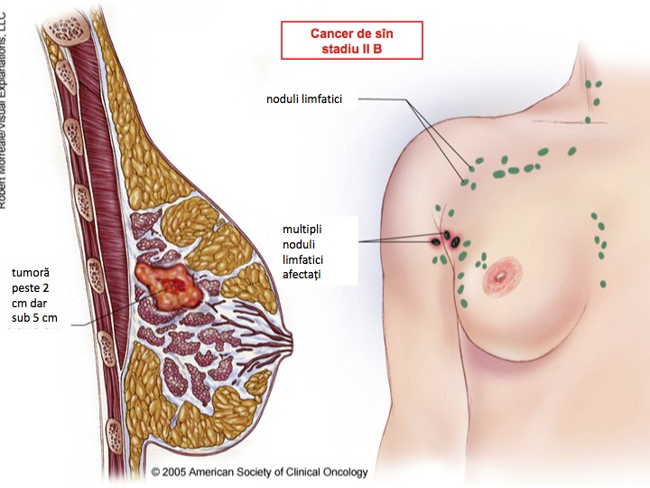 cancer mamar chimioterapie cancer osos rata de supravietuire