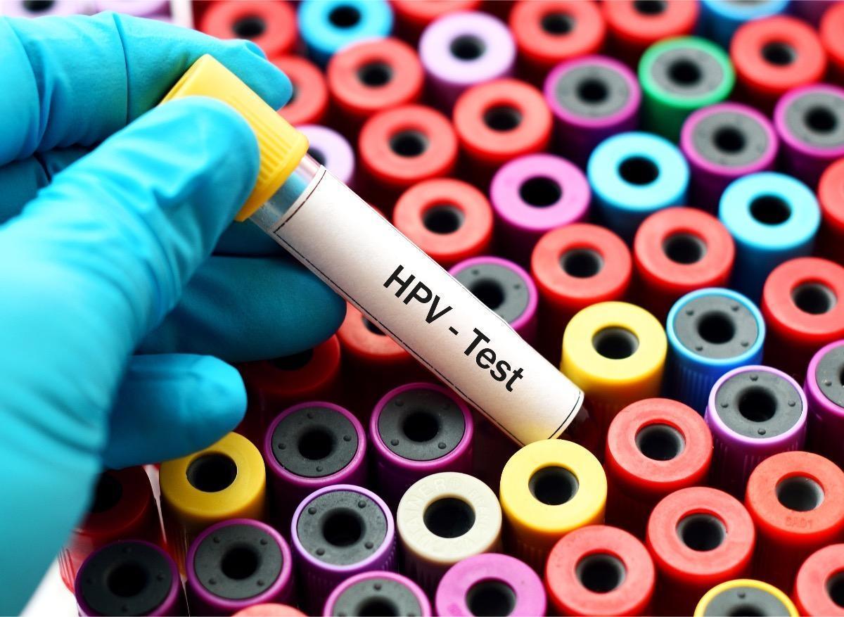 papillomavirus que faire)