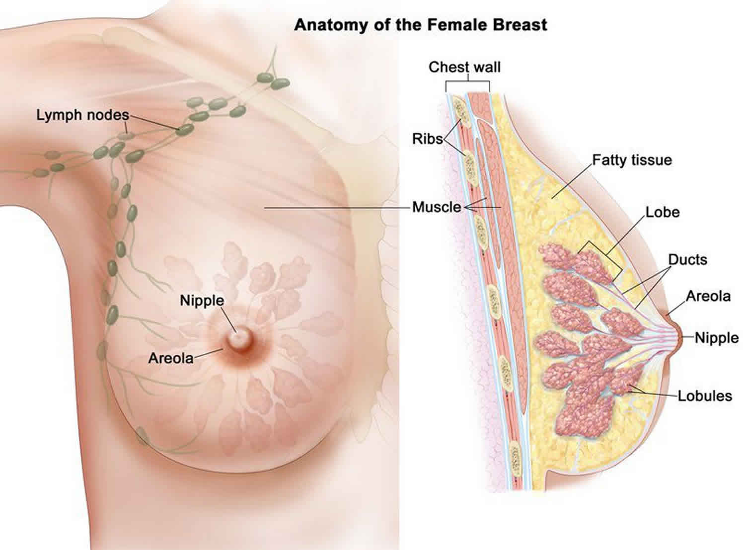 what causes papilloma in the breast