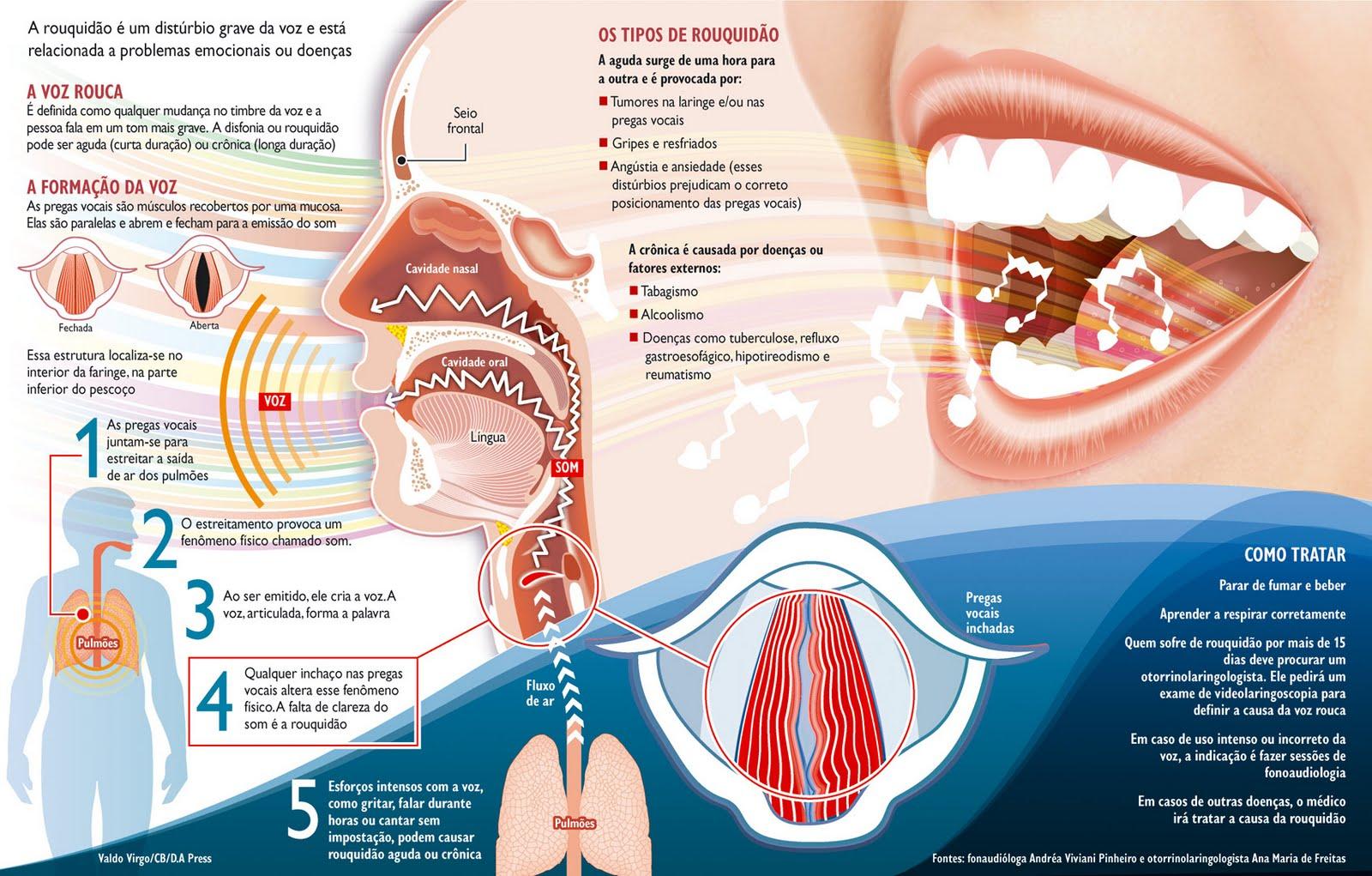 cancer laringe cie 10)