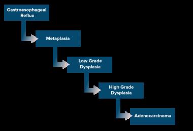 cancer gastro-esofagian