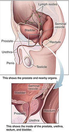cancer de prostata metastasis)