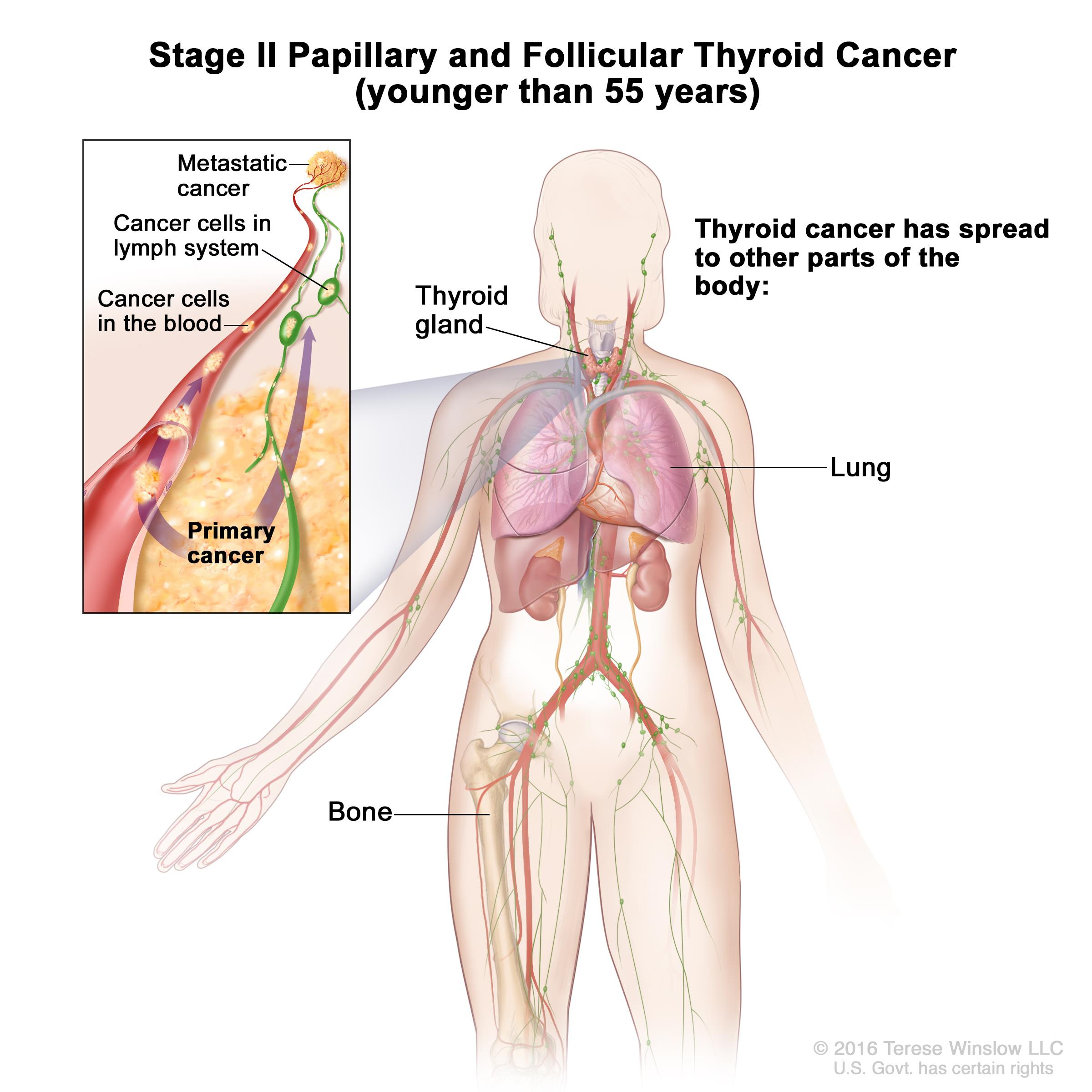 papillary thyroid cancer metastasis to lung symptoms