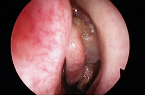 papilloma al seno maligno