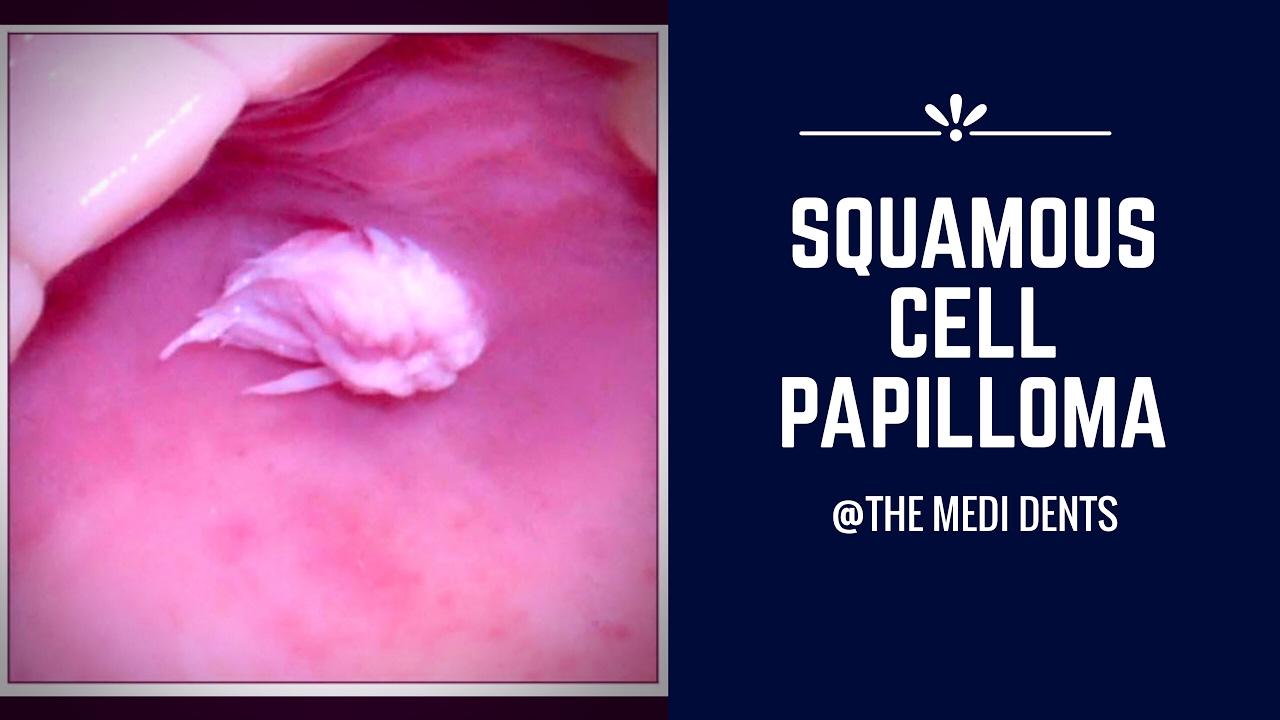 tagalog of papillomas