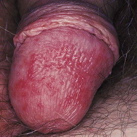 hpv related warts is ductal papilloma cancer