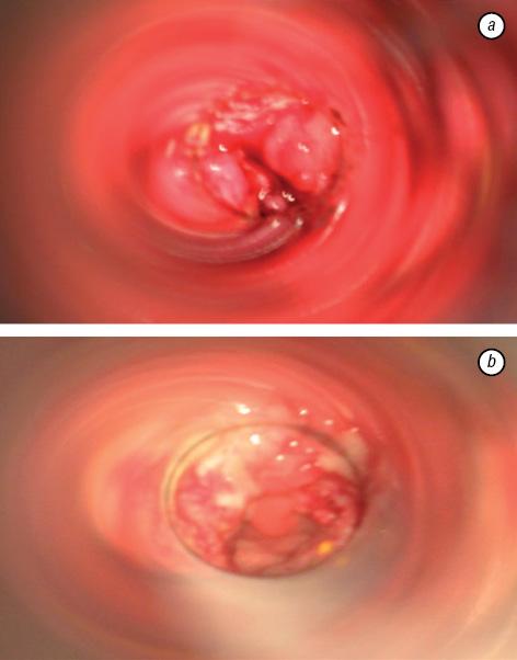 benign squamous papillomas virus de papiloma tiene cura