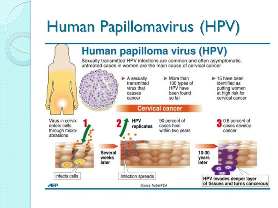 hpv cervical cancer sexually transmitted