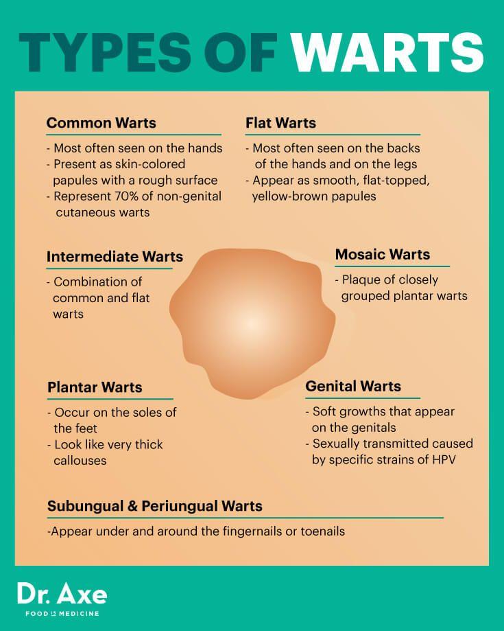 treat hpv warts at home)