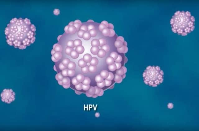 papillomavirus hpv femme)