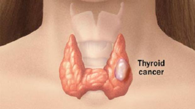 Informații despre Cancerui Tiroidian