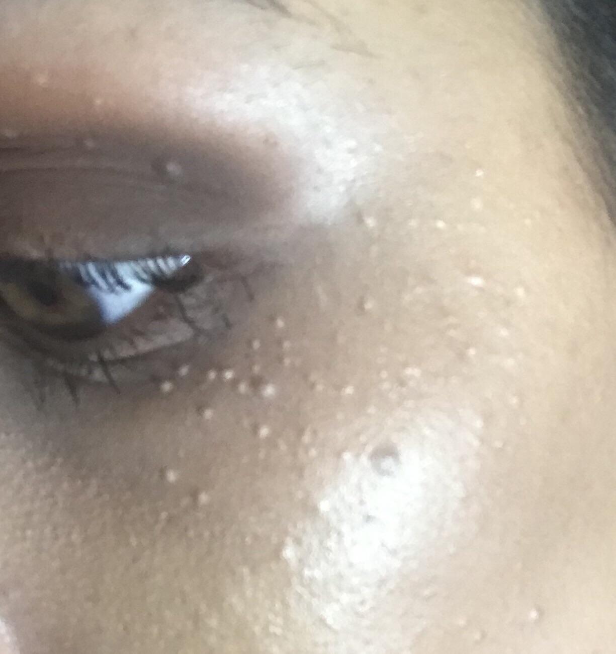 wart on top eyelid)