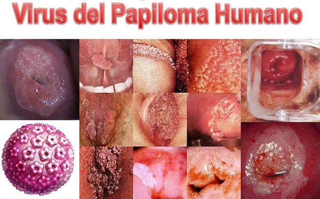 hpv virus and prostate cancer cancer colorectal hereditario