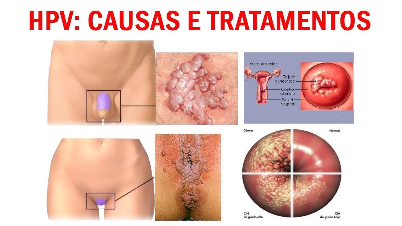 tratamento papiloma virus