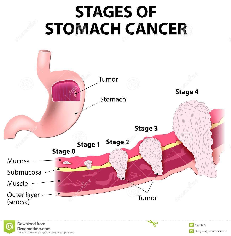 gastric cancer vertaling)