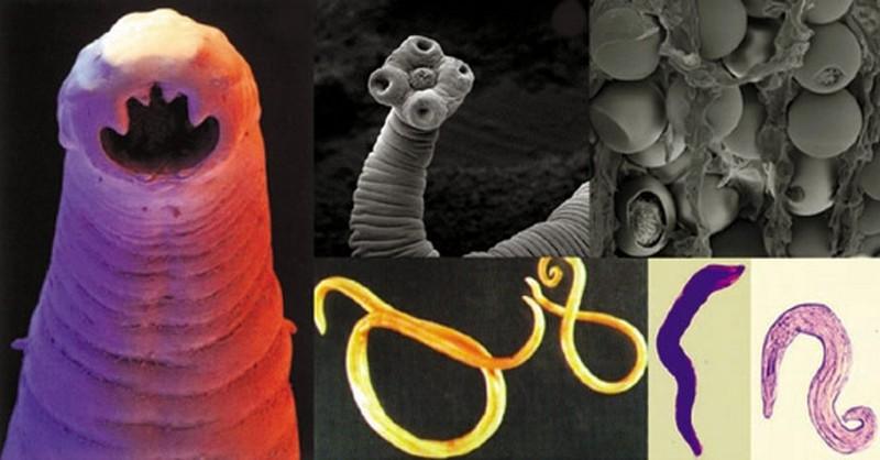 parazity v ludskom tele diagnostika