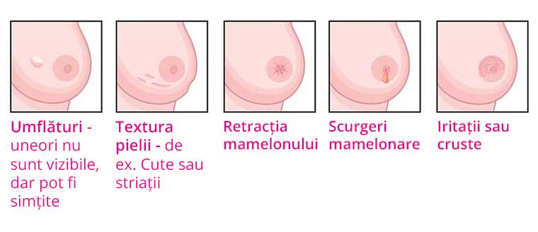 simptome cancer san avansat