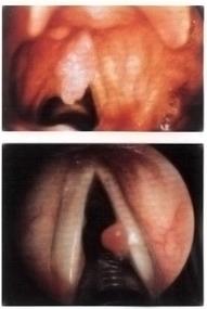 papilloma virus corde vocali