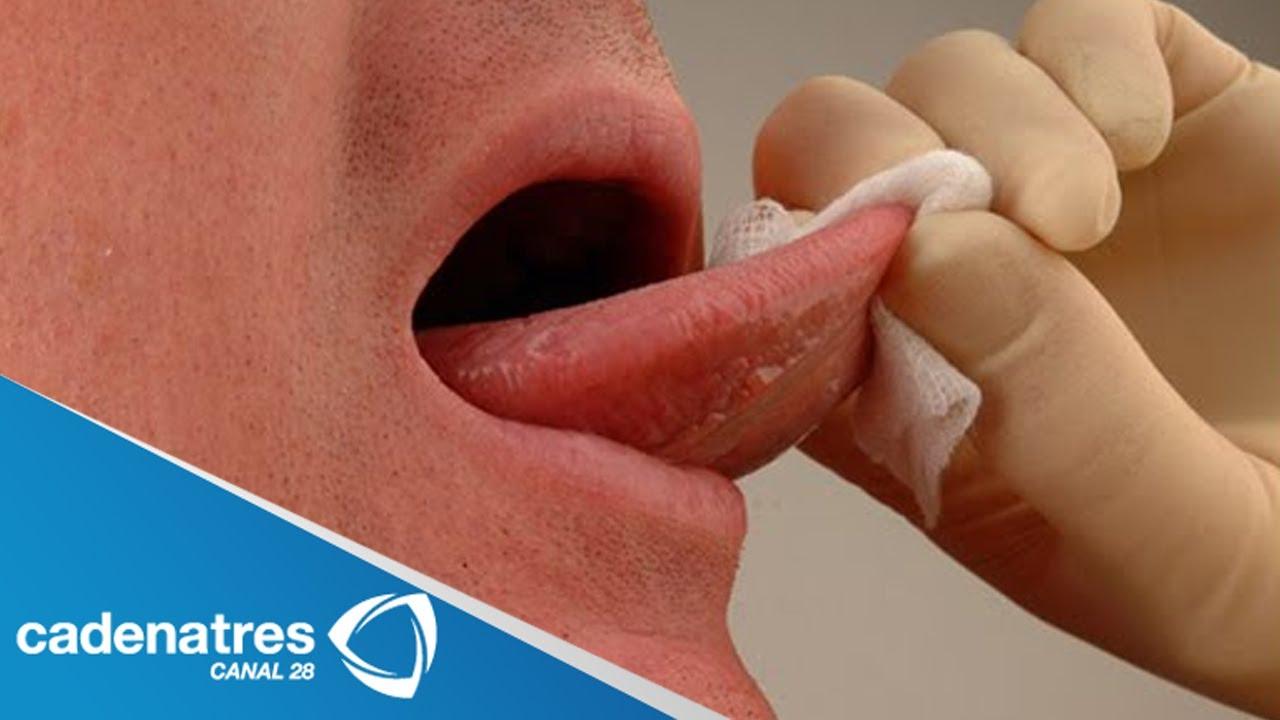 cancer bucal como detectar