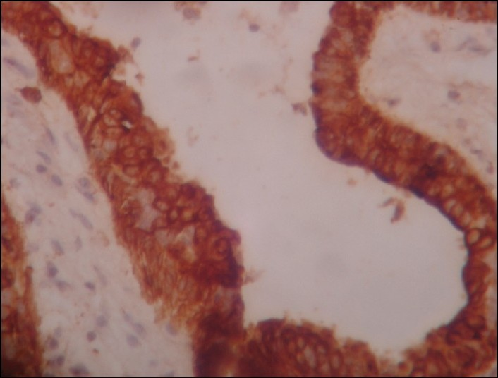 papiloma intraductal mama gpc