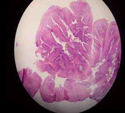 papiloma esofagico hpv)