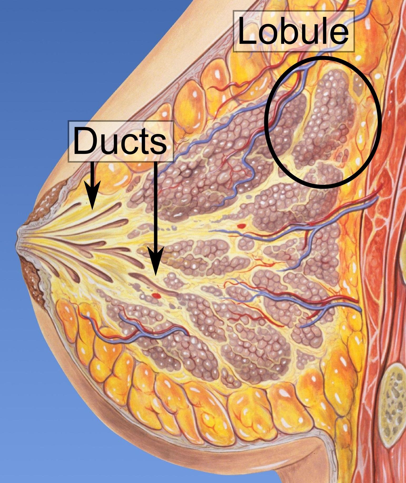 papilloma of breast icd 10)