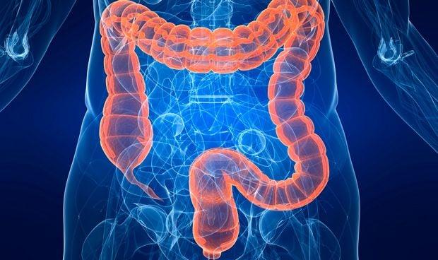 cancer de colon hereditario)