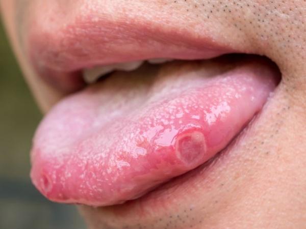 human papillomavirus and mouth)