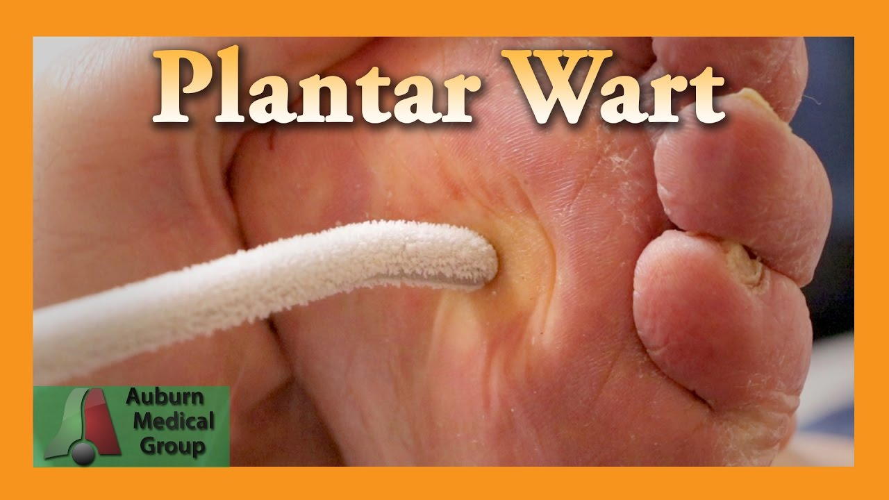 foot wart how to treat