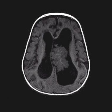 benign choroid plexus papilloma