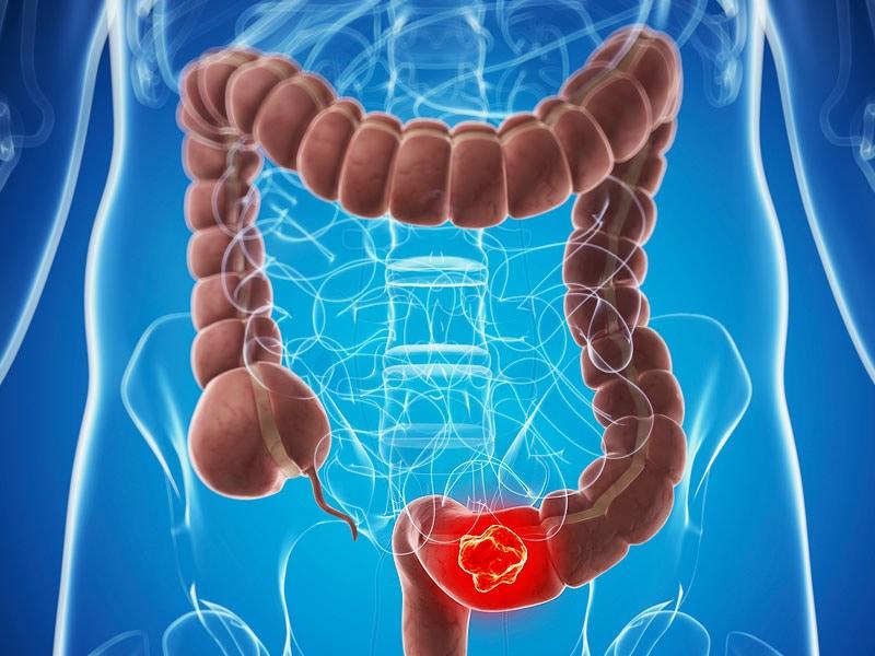 cancer man aggressive in bed cancer de prostata psa